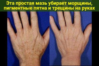 Эта простая мазь убирает морщины, пигментные пятна и трещины на руках