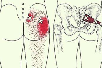 2 трюка, которые разблокируют седалищный нерв и облегчат боль в течение нескольких минут!