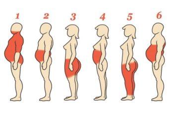 6 типов ожирения. Как справиться с каждым из них