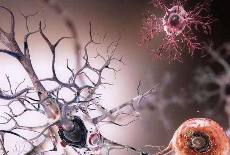 Если хотите предотвратить деградацию мозга, употребляйте достаточное количество холина!
