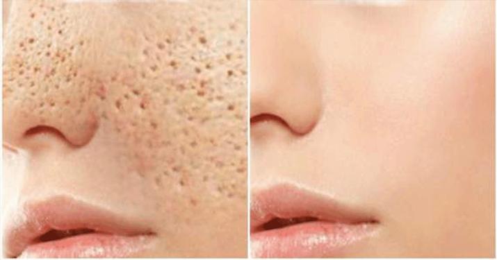Поры на лице исчезнут через 3 дня, если вы будете применять одну из 4-х эффективных масок! 4 природных рецепта