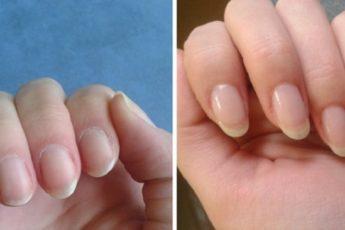 Как быстро отрастить ногти, которые никогда не сломаются — простое средство из 4 компонентов!
