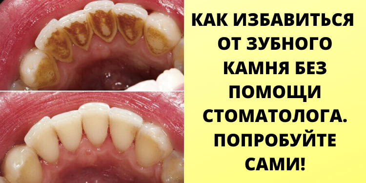 Как избавиться от зубного камня дома, без помощи стоматолога