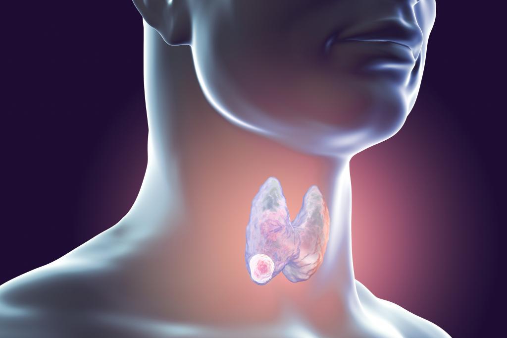 Щитовидная железа: Орган НЕДОВОЛЬСТВА. Полезная статья
