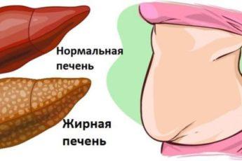 6 явных признаков того, что Ваша печень полна токсинов и вредных элементов