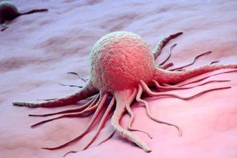 Как Жить, Чтобы не Заболеть Раком: 5 Важных Советов!