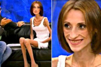 В 19 лет — 26 кг, как изменилась девушка спустя пять лет после «Пусть говорят»