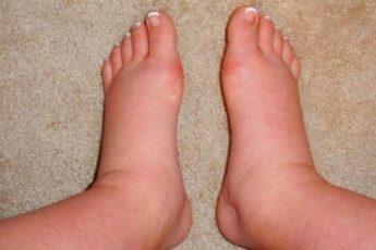 Почему у женщин после 50-ти могут отекать ноги по утрам и вечерам