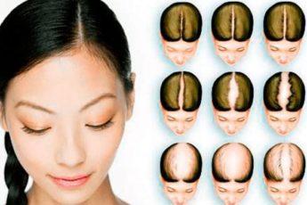 Выпадают волосы? Используй простой метод от облысения!