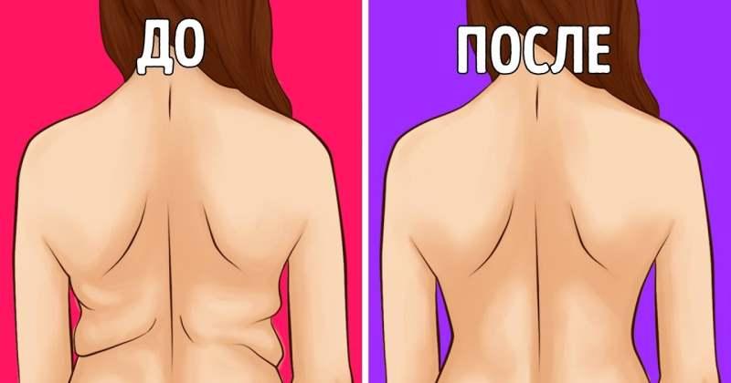 Как избавиться от валиков жира на боках