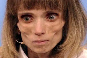 Как сложилась жизнь Кристины из передачи «Пусть говорят», весившая 17 килограмм