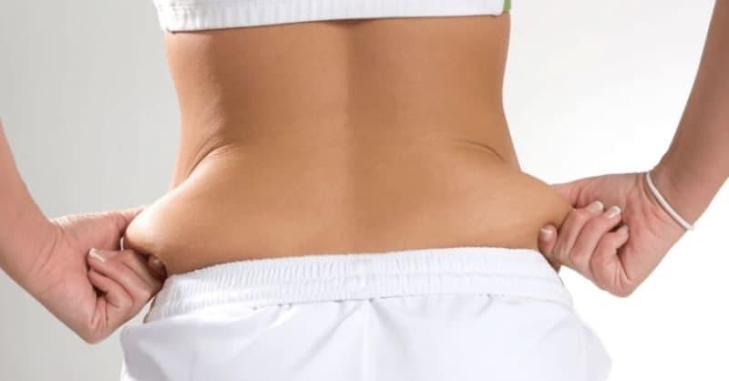 Синдром Венеры: как убрать жировые подушки на бёдрах и животе