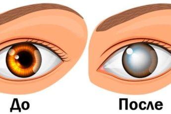 Офтальмологи предупреждают! Никогда не делайте этого! Это приводит к слепоте и не только…